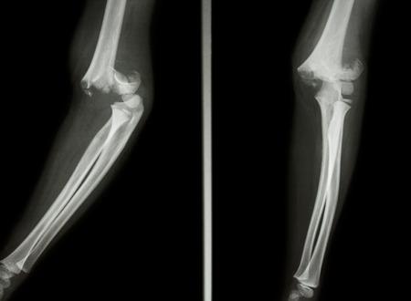 luxacion: De rayos X de cine codo espectáculo fractura supracondílea de húmero