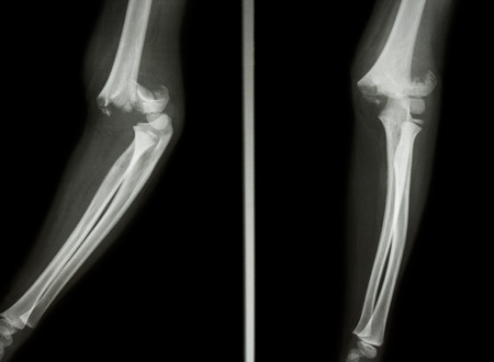 Film X-ray elbow show Supracondylar humerus fracture Stock Photo - 25772910