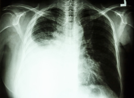 film chest X-ray PA upright   show pleural effusion at right lung due to lung cancer