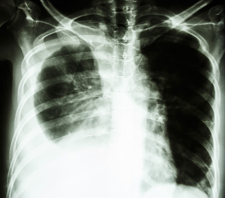 film chest X-ray PA upright   show pleural effusion at right lung due to lung cancer Stock Photo - 25799651