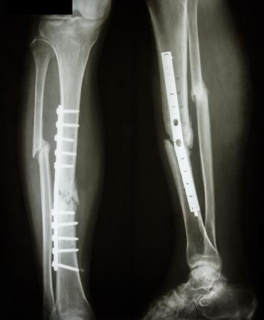 pierna rota: película AP pierna lateral muestra el eje de la fractura de la tibia y el hueso de la pierna del paciente peroné s fue operada y coloque la placa y tornillo para el hueso de la pierna fix s Foto de archivo