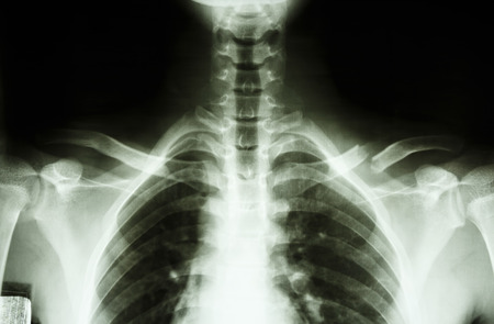Film X-ray show complete fracture middle 1 3 left clavicle Stock Photo - 25799623