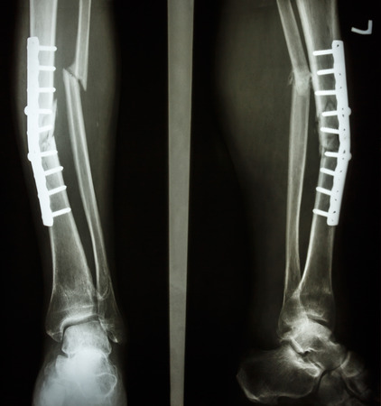 film leg AP/lateral : show fracture shaft of tibia and fibular (leg's bone). patient was operated and insert plate and screw for fix leg's bone Stock Photo - 25799357