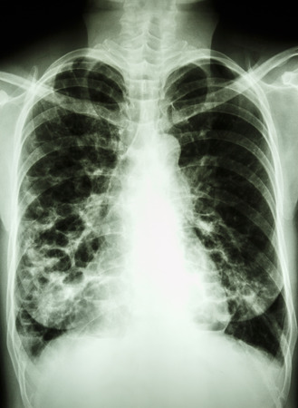 bleb: Bronchiectasis  film chest X-ray PA upright : show multiple lung bleb at both lung