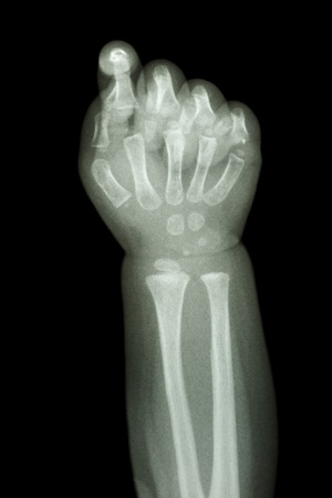 film x-ray forearm and hand : show normal infants bone photo