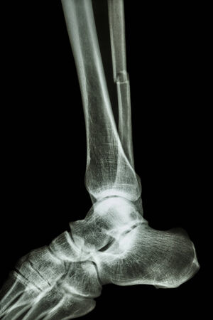 film x-ray ankle lateral : show complete fracture shaft of fibula (legs bone) photo