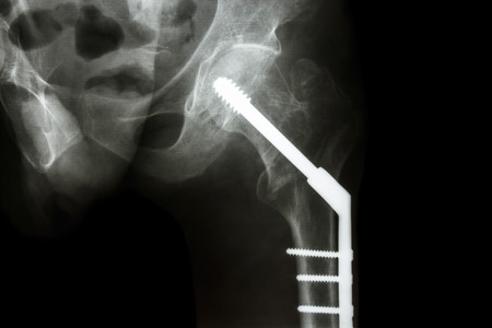 film x-ray left hip : show fracture neck of femur(thigh's bone). patient was operated and fixed bone by screw Stock Photo - 25942480