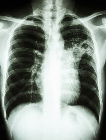 film chest x-ray show alveolar infiltrate at left middle lung due to Mycobacterium tuberculosis infection (Pulmonary Tuberculosis) Stock Photo - 26045075