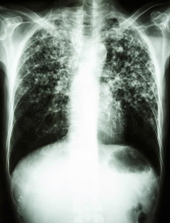 interstitial: film chest x-ray show interstitial infiltrate both lung due to Mycobacterium tuberculosis infection (Pulmonary Tuberculosis) Stock Photo