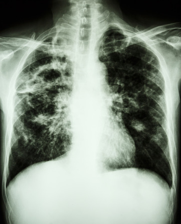 interstitial: film chest x-ray show cavity at right lung,fibrosis & interstitial & patchy infiltrate at both lung due to Mycobacterium tuberculosis infection (Pulmonary Tuberculosis) Stock Photo