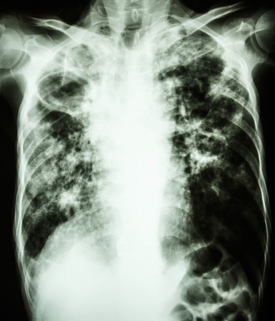 film chest x-ray show cavity at right lung,fibrosis & interstitial & patchy infiltrate at both lung due to Mycobacterium tuberculosis infection (Pulmonary Tuberculosis) Stock Photo - 26045078