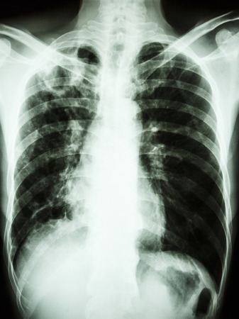 film chest x-ray show cavity at right upper lung due to Mycobacterium tuberculosis infection  Pulmonary Tuberculosis  Stock Photo - 26139729