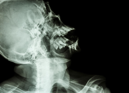 film x-ray skull lateral : show normal humans skull photo