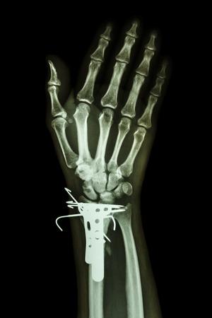 distal: AP muñeca de rayos x película: mostrar la fractura distal del radio (hueso del antebrazo). Fue operado y se inserta la placa y el K-wire (alambre de Kirschner)