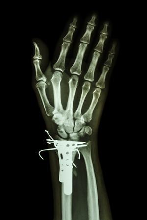 operated: film x-ray wrist AP : show fracture distal radius (forearms bone). It was operated and inserted plate and K-wire(Kirschner wire)