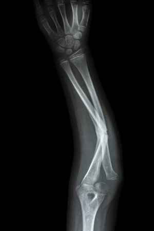 film x-ray forearm AP : show fracture shaft of ulnar(forearms bone) photo