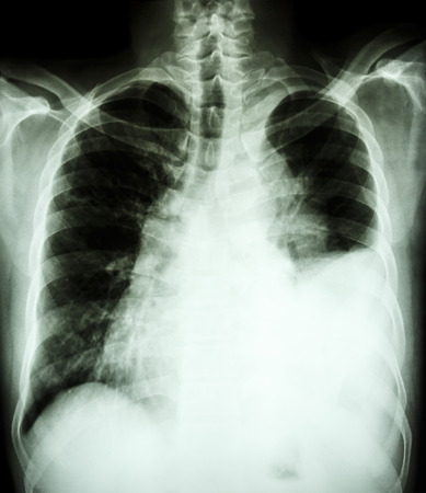 film chest X-ray PA upright   show pleural effusion at left lung due to lung cancer