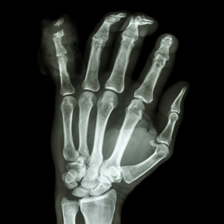 distal: AP mano de rayos x pel�cula muestra la fractura distal pharange me�ique