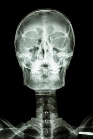 film x-ray   normal human photo