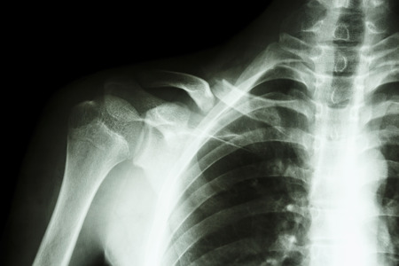 film x-ray right clavicle collarbone    show fracture right clavicle photo