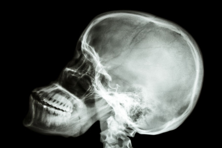 film x-ray skull lateral   show normal human photo