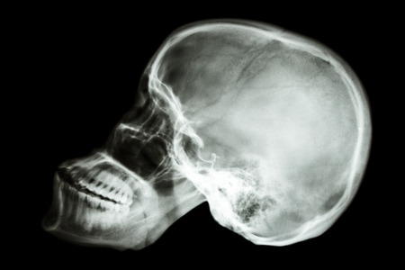 film x-ray skull lateral of asian people  thai people  photo
