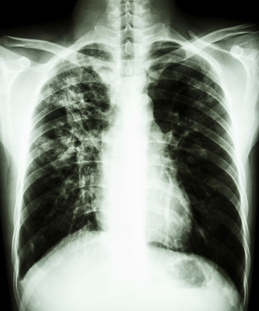 film chest x-ray PA upright   show interstitial infiltration at right lung due to mycobacterium tuberculosis infection  Pulmonary tuberculosis  Stock Photo - 26370417