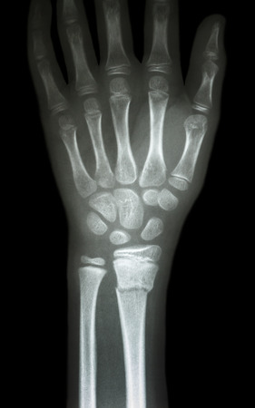 fracture distal radius  forearm s bone  photo