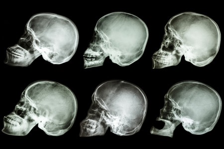Collection of x-ray asian s skull photo
