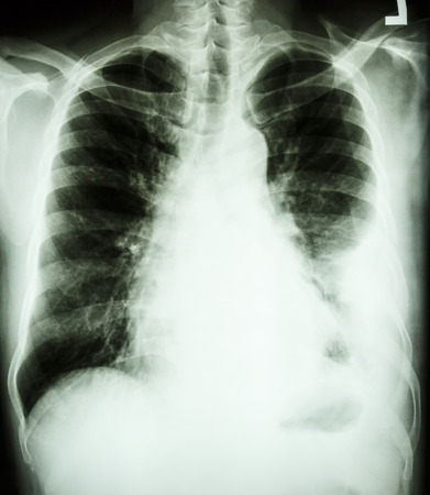 effusion: film chest X-ray PA upright   show pleural effusion at left lung due to lung cancer