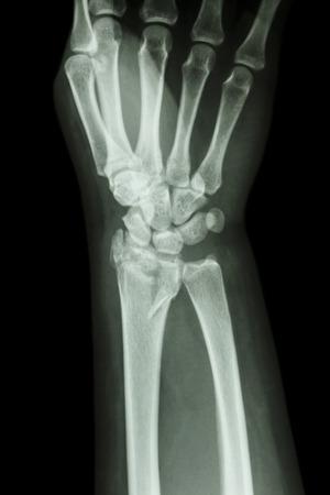 distal: fiilm radiografia del polso mostra frattura del radio distale dell'avambraccio osso