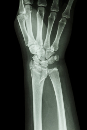 fiilm x-ray wrist show fracture distal radius  forearm bone  photo
