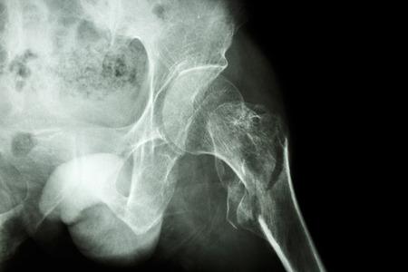 broken leg: film x-ray show intertrochanteric fracture left femur Stock Photo