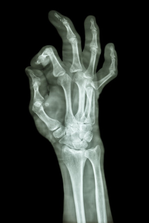 distal: fractura conminuta pharange distal del dedo medio