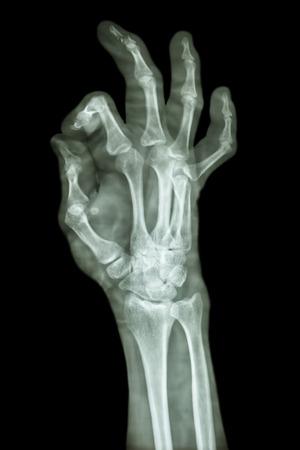 distal: Sminuzzare pharange frattura distale del dito medio Archivio Fotografico
