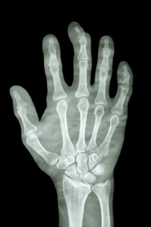 comminute fracture distal pharange of middle finger photo