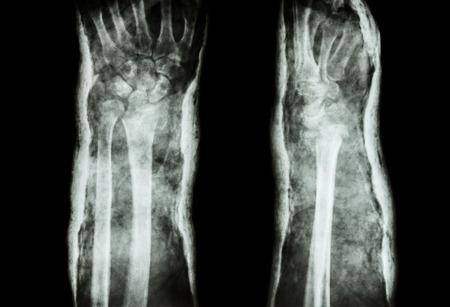 distal: fractura de Colles del radio distal Foto de archivo
