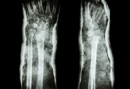 distal: fracture distal radius  Colles