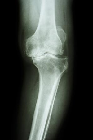 artrosis: AP radiografía de la rodilla película de rodilla osteoartritis de rodilla OA paciente Foto de archivo