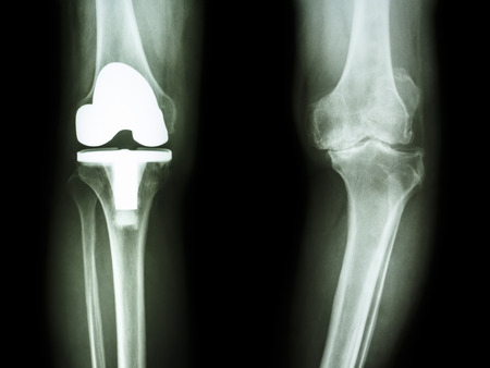 replacement: film x-ray knee of osteoarthritis knee patient and artificial joint Stock Photo