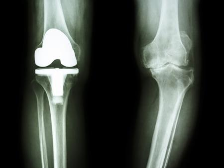 artrosis: radiografía de la rodilla del paciente película osteoartritis de rodilla y articulación artificial Foto de archivo