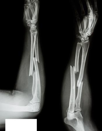 raggio: Albero frattura di raggio ulnare ossea Archivio Fotografico