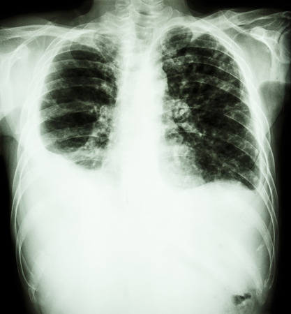effusion:  Pulmonary Tuberculosis    film chest x-ray   Right pleural effusion and minimal left pleural effusion due to mycobacterium tuberculosis infection