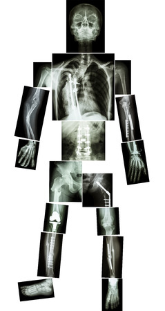 internal organs: skeleton of human and multiple fracture  he was operated and internal fixed by plate and screw at multiple site Stock Photo