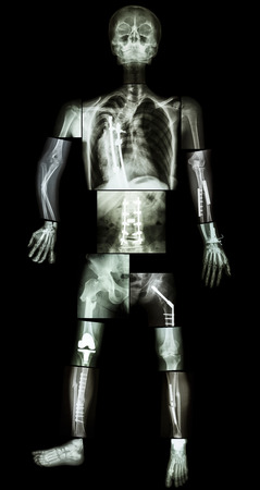 operated: skeleton of human and multiple fracture  he was operated and internal fixed by plate and screw at multiple site Stock Photo