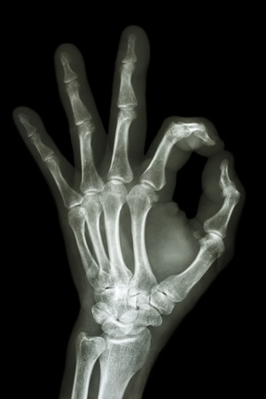 ok symbol: A mano a raggi X con il simbolo OK Archivio Fotografico