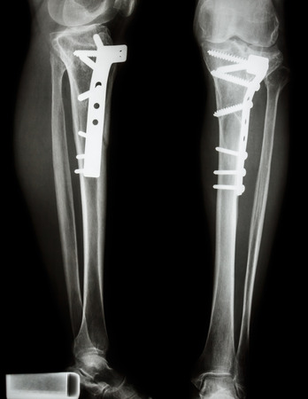 fracture tibia leg bone   It was operated and internal fixed by plate screw