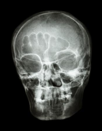 thai people: X-ray skull oblique  of thai people