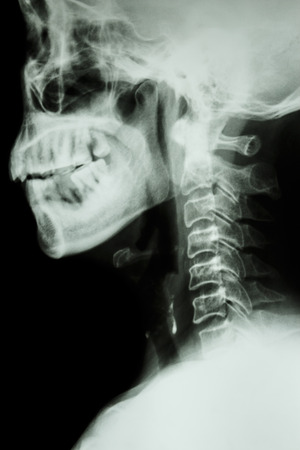 X-ray cervical spine of asian people photo