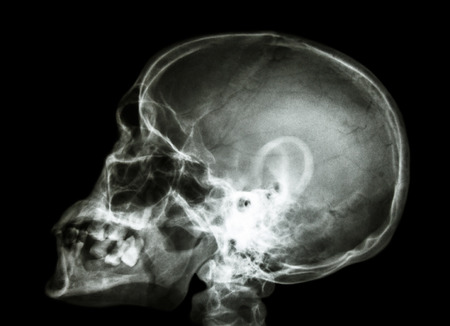 X-ray asian skull and cervical spine photo